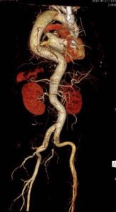 Angio tomografía
