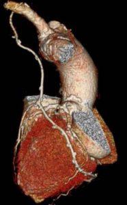 Cardiotomografía
